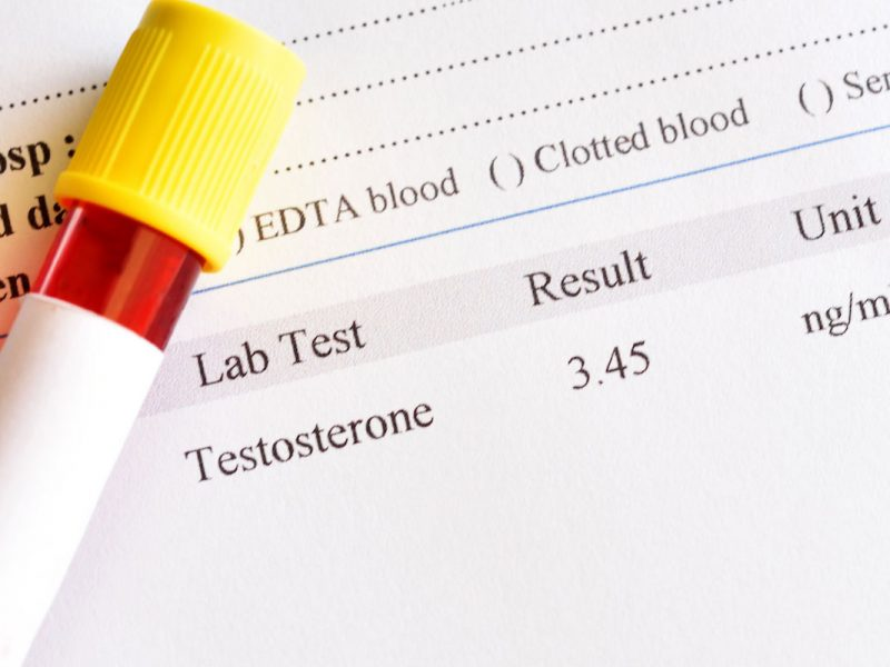 How Testosterone Benefits Your Body